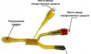 Ямик процедура при гайморите
